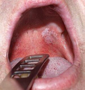 English: Toxic leukoplakia of the oral mucosa ...